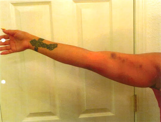 Images from the incident report show bruises on Desiree Martinez after she said Clovis police officer Kyle Pennington beat her. Ultimately he pleaded no contest to misdemeanor domestic violence.