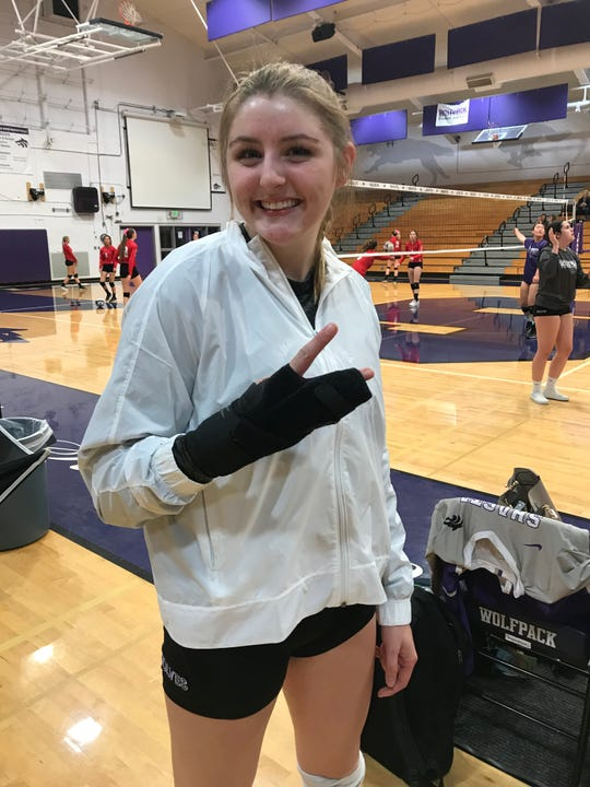 Shasta outside hitter Courtney Oilar shows off her specialized tape procedure that protects her injured right hand.