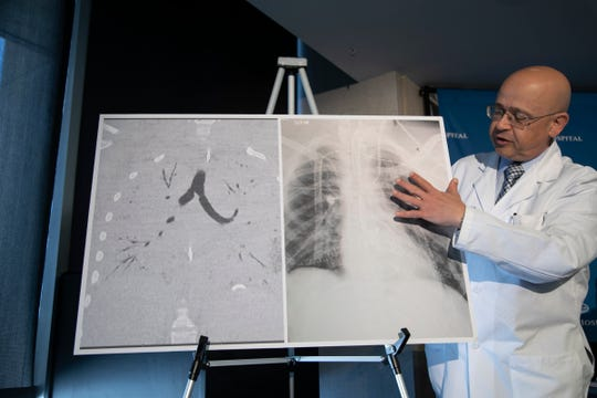 Henry Ford Hospital Dr. Hassan Nemeh shows before-and-after images of vape-damaged lungs, left. The image on the right is a photo after a double-lung transplant performed on a 17-year-old vape user. The images were shown during a press conference at Henry Ford Hospital in Detroit on Tuesday, Nov. 12, 2019.