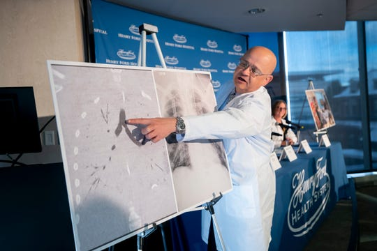 Thoracic surgeon Dr. Hassan Nemeh goes over the differences between the original lungs and the transplanted ones during a press conference at Henry Ford Hospital in Detroit on Tuesday.