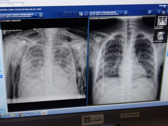 A lung x-ray of Zane Martin, 15 of Desert Hot Springs. The left x-ray shows his lungs filled with fluid when he first arrived at Loma Linda children's hospital. The right image shows his lungs healing nearly a month later.
