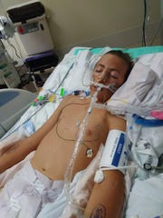 Zane Martin, 15 of Desert Hot Springs,  at Loma Linda to help him breathe following a vaping-related lung illness.