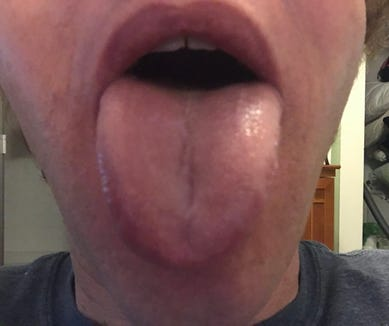 This is a tongue. Note, it is not a beef tongue, but a human tongue