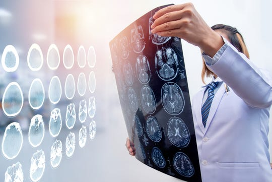 Learn why each brain injury is unique and requires extremely individualized care and services.