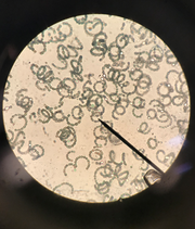 A sample from a possible blue-green algae bloom in the Santa Rosa Sound is pictured underneath a microscope.