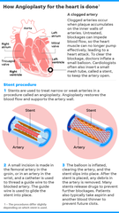SOURCE National Institutes of Health; National Heart, Lung and Blood Institute; USA TODAY research