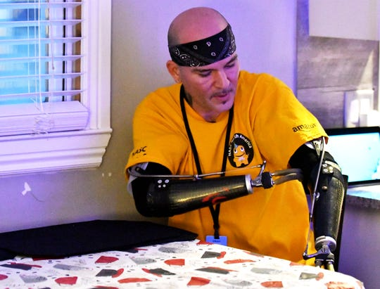 In his home in Trenton, Kevin Blackburn, 42, talks about adapting to prosthetics and his road to employment at Amazon following a few despondent years after losing both forearms in a workplace accident.