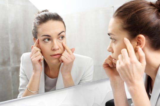 Baggy eyes — swelling or puffiness around the eyes — are common as people age.