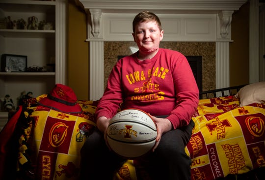 Iowa State fan Michael McDonough, who has been battling Stevens-Johnson syndrome, has gotten support from Cyclones men's basketball coach Steve Prohm.