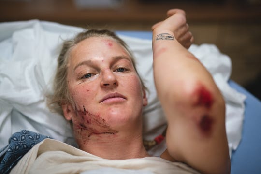 Pro climber Emily Harrington of Olympic Valley, Calif., shows some of the injuries she suffered during a fall at Yosemite National Park. The fall occurred Nov. 24, 2019.