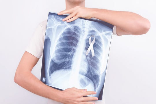 Consider a free lung cancer screening if you meet these criteria.