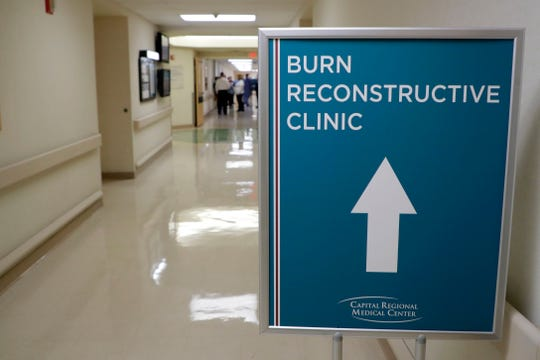 The new Joseph M. Still Burn Center at Capital Regional Medical Center accepts appointments and walk-in patients each Wednesday.