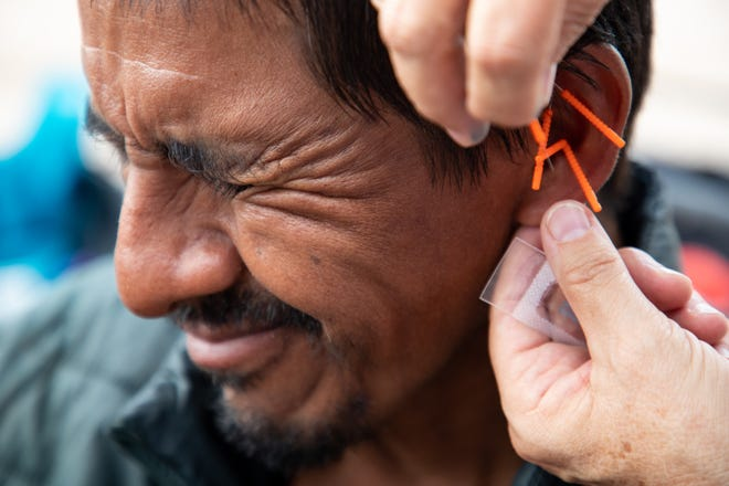 A migrant receives acupuncture treatment from volunteers with Acupuncturists Without Borders.