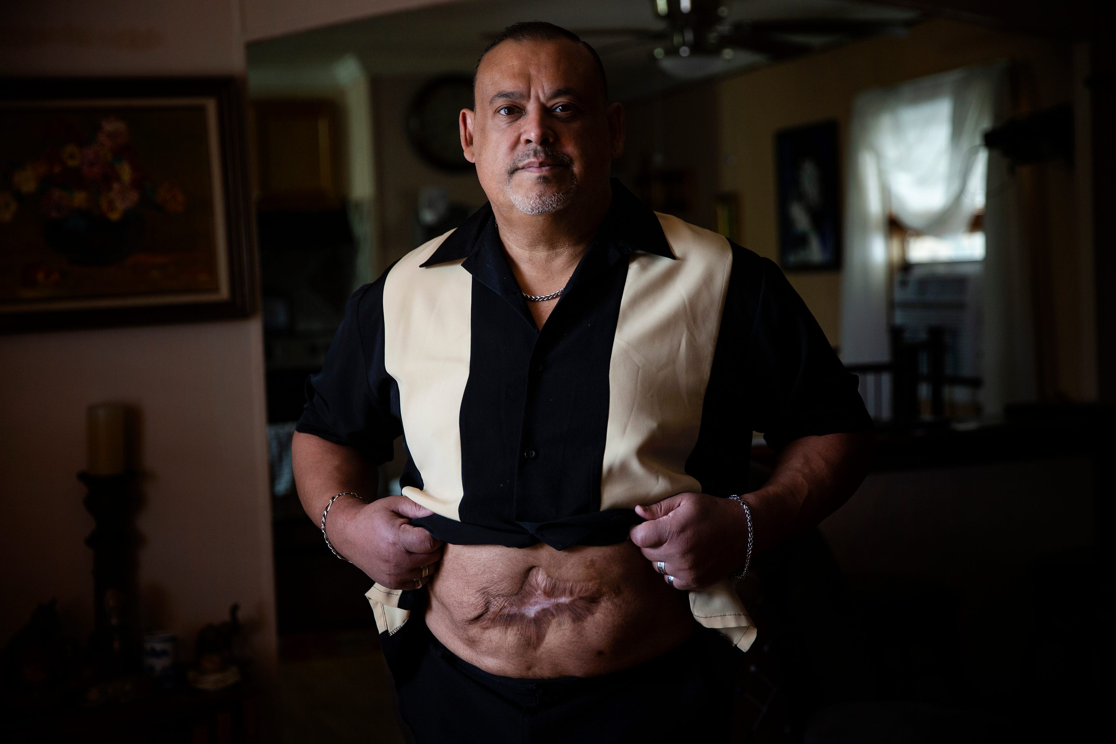 """Ricardo """"Rick"""" Martinez was hospitalized in 2013 after Dr. Amaryllis Pascual perforated his small bowel in multiple places and committed other errors during liposuction. Martinez, now 56, shows his scar."""