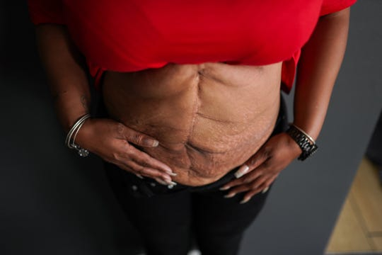 Nyosha Fowler of Detroit shows off some of the scarring to her stomach.