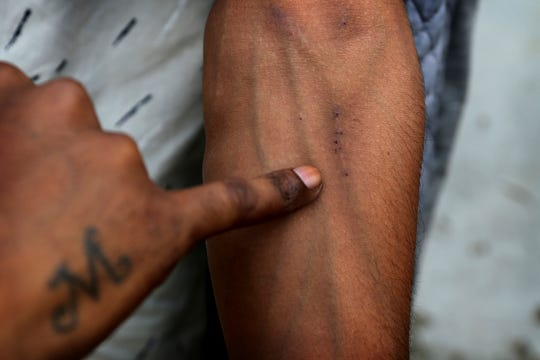 In this Thursday, Oct. 31, 2019, photo, a recovering drug user shows his veins at a de-addiction center in Kapurthala, in the northern Indian state of Punjab.