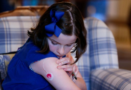 Sixth-grader Ellie Rowe, who has diabetes, show where her insulin pump connects to her arm.