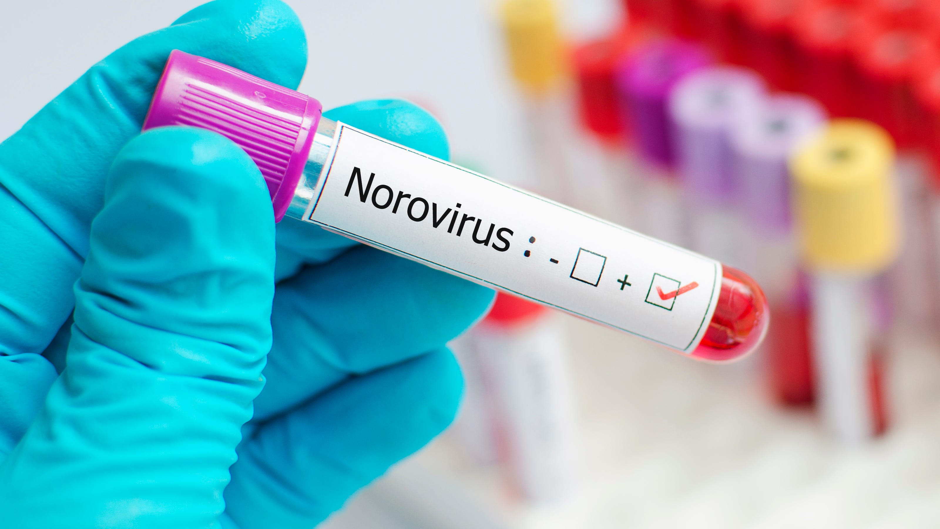 norovirus symptoms reddit