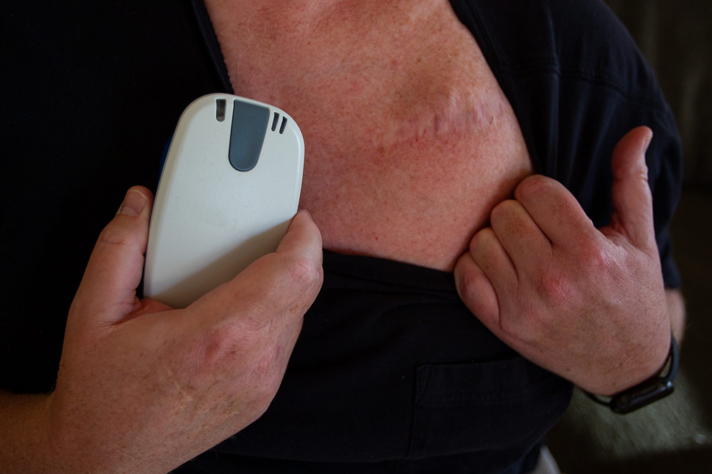 John Collins shows the scar from where his defibulator is placed.
