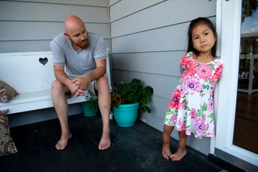 Minh Best, 4, is ready to go back inside with her dad, Justin, after she finished up her occupational therapy session at their Owensboro, Ky., home Wednesday afternoon. The youngster was born without arms and is using her feet and toes to do everything most other people use their hands and fingers for.