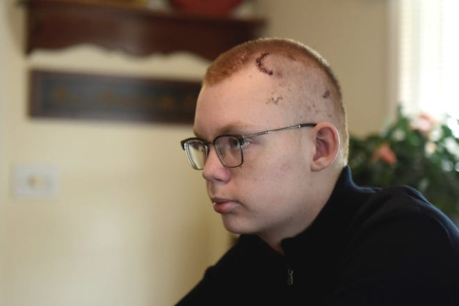 Grant Dotson, 15, recalls the events that led to his craniotomy in early December, 2019.