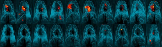 This image provided by the University of Pittsburgh School of Medicine and the National Institute of Allergy and Infectious Diseases shows a collection of lung scans of 20 monkeys who were exposed to tuberculosis after receiving different forms of a TB vaccine.