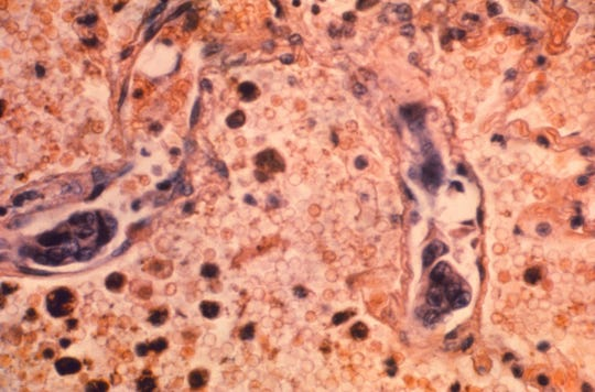 A lung tissue specimen from a patient with adenocarcinoma of the lung.
