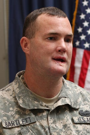 Army Sgt. Robert Bartlett was disfigured during deployment in Iraq in 2005.
