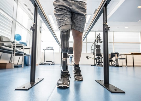 Prosthetists at Amputee Clinic get to know their patients, study the intricacies of their limbs, and listen to any concerns they may have about prosthetics they've used in the past.
