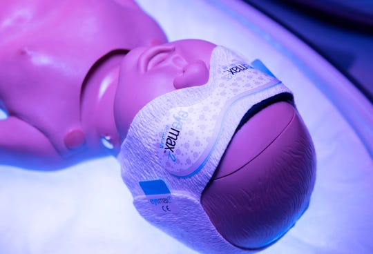 Protective eye wear is placed over infants eyes during phototherapy.