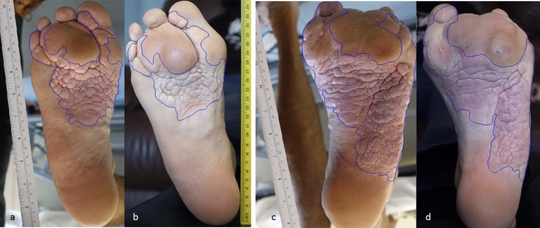 Proteus syndrome patients in ArQule's initial study of a drug to treat the disease experienced a softening of overgrowth lesions on their feet, and in some cases, a reduction in the overgrowths.