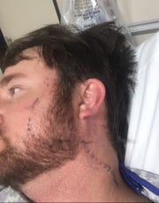 Tyler Hardy of Philadelphia, Mississippi, said the burning and swelling caused by the copperhead snake bite on his head Jan. 15, 2020, began spreading within minutes of the bite.