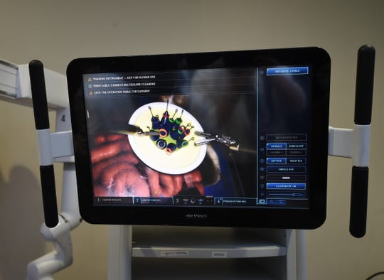 This overhead display shows the view from the camera in the da Vinci Xi surgical system. The robot has four arms and allows surgeons to conduct minimally invasive surgeries.