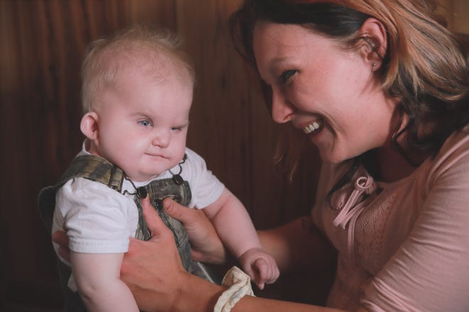 Hunter Bruton, now age 2, has CHARGE syndrome. He does not have a thymus and, consequently, no immune system. He is on Duke University's wait list to have a thymus transplant. He is pictured here with his mom, Victoria Parker.