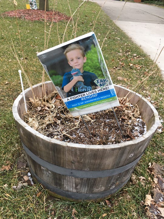 A sign in the Cohoon family's front yard salutes son Nic, who has neurofibromatosis. His parents, Sheila and Daryl, have made and shipped dozens of similar signs to the homes of other families, featuring those households' afflicted children.