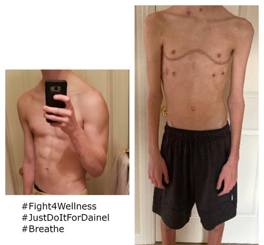 Daniel Ament is photographed before and after his double lung transplant surgery. The 17-year-old from Grosse Pointe Woods was so badly sickened by vaping, that he needed new lungs to survive