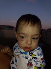 Garhett Galison admitted to punching his 11-month old son, Gabriel, in the face causing a black eye.