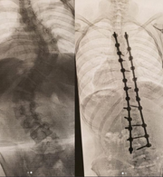 On the left is an X-ray of Zane Trace Middle School student Lily Rose's spine before she had surgery for scoliosis. The S shaped curves were 60-degree bends. On the right is an image of Rose's spine after the curve was corrected using screws and cobalt rods.