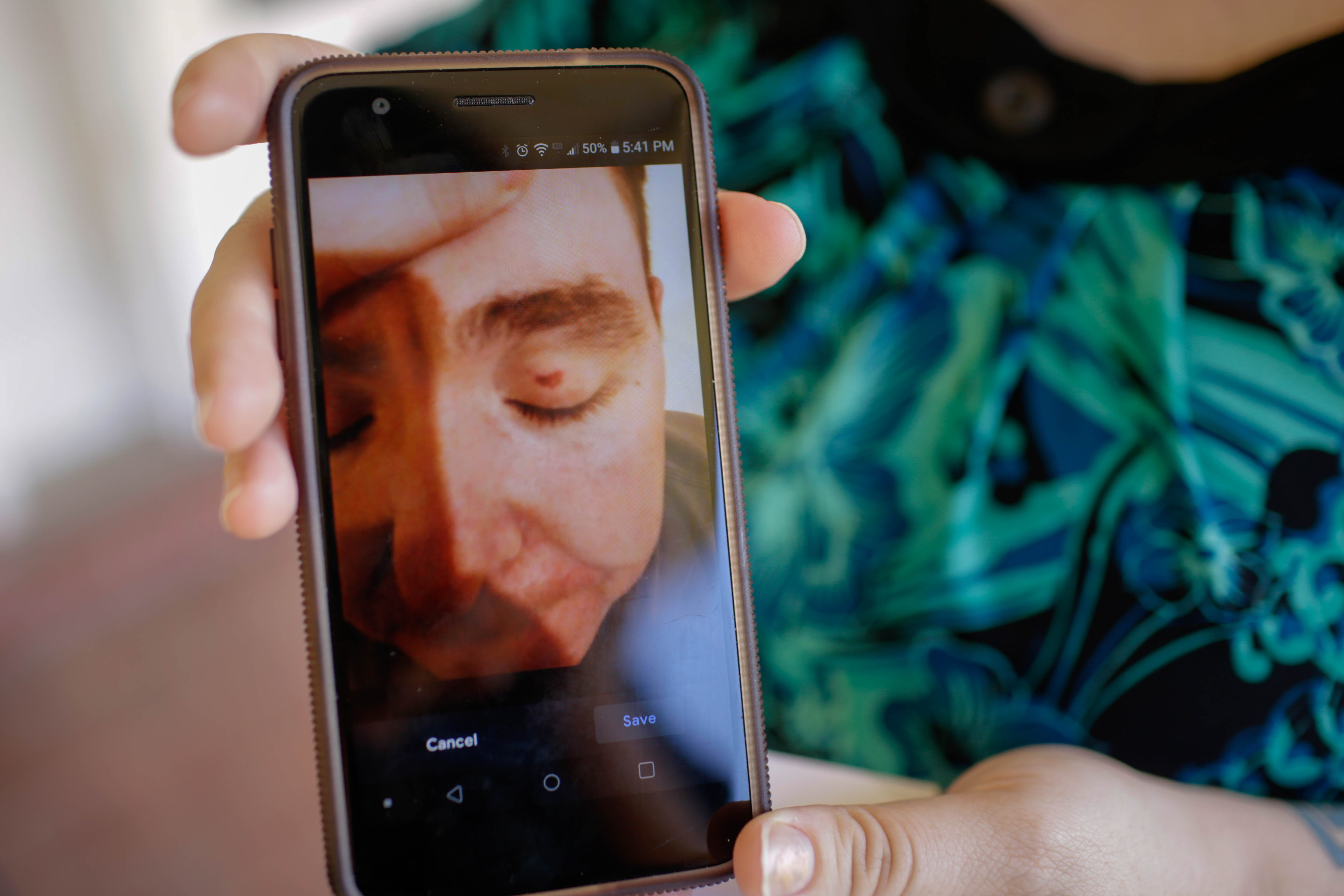Sgt Bryan Gaston's wife shows a photo of a boil on his eyelid that appeared after a prisoner threw feces and urine in Gaston's face while he worked at Wilkinson County Correctional Facility in Woodville, Miss.