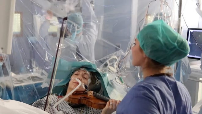 Woman plays the violin while undergoing surgery to remove brain tumor at...
