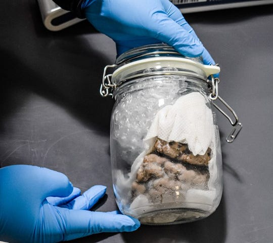 U.S. Customs and Border Protection officers seized a human brain in an international mail truck that crossed the Blue Water Bridge in Port Huron last week.