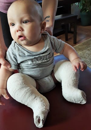 A strong and active baby, Lane is generally unconcerned for the plaster casts that are part of his clubfoot treatment, according to his mother, McKeela Sansome.