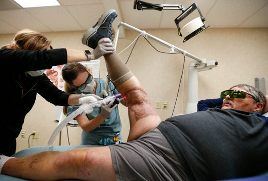 Dr. Krisi Causa, center, and medical assistant Valerie Massey, left, use a laser on Ron Otradovec's leg on Wednesday to help heal scar tissue left after an industrial accident seriously injured his leg in 2018.