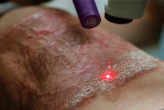 A laser dances on scar tissue on Ron Otradovec's leg on Wednesday. Dr. Krisi Causa is using the laser as part of Fractional CO2 Laser Therapy to help heal scar tissue left after an industrial accident seriously injured his leg in 2018.