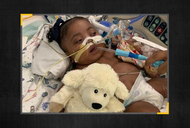 One-year-old Tinslee Lewis has never seen the outside of the intensive care unit of Cook Children's Medical Center in Fort Worth.