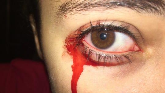 A look at the bleeding eye of Milan's Sophia Kirk.