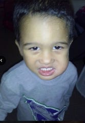 Gregory, at 3, when his root canals became infected.