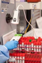 LAKE SUCCESS, NY - MARCH 11: A lab technician begins semi-automated testing for COVID-19 at Northwell Health Labs on March 11, 2020 in Lake Success, New York.  An emergency use authorization by the FDA allows Northwell to move from manual testing to semi-automated.
