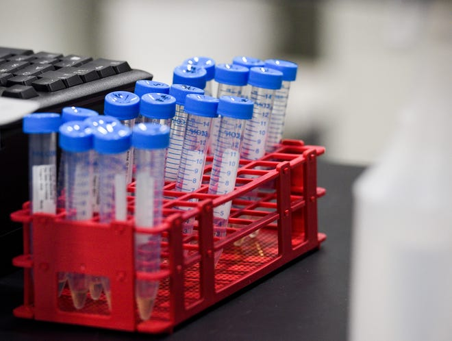 Tubes sit in a holder in the lab on Thursday, March 19, 2020 at SAB Biotherapeutics in Sioux Falls.