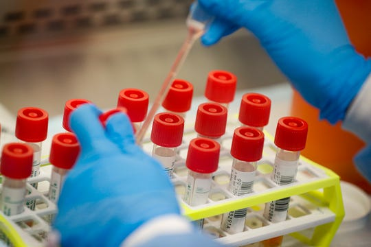 A technician prepares COVID-19 coronavirus patient samples for testing march 11, 2020, at a laboratory in New York's Long Island.